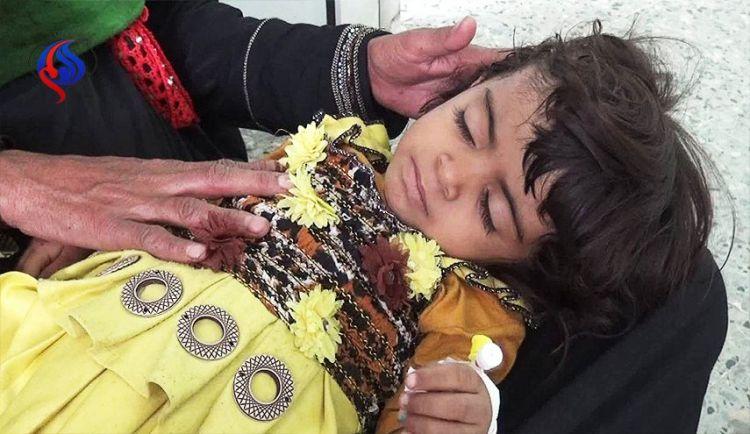 """الأمم المتحدة بدأت تخسر """"المعركة ضد المجاعة"""" في اليمن"""
