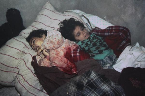 """""""Ermeni militan Azerbaycan Türkü bebeği kütüğün üstünde paramparça etti"""" - Karadağlı faciasından 28 yıl keçiyor"""
