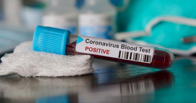 Koronavirüs Azerbaycan'da 2 can daha aldı