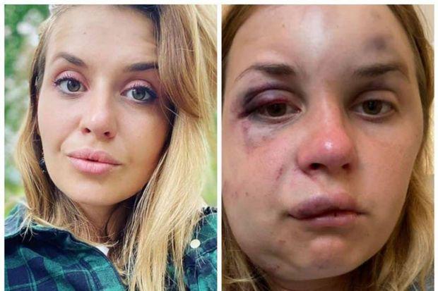 Украинскую телеведущую избили и пытались изнасиловать в поезде - ВИДЕО