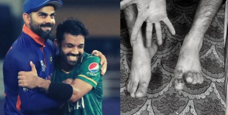 Kashmiris beaten, cricketer abused after India loses to Pakistan